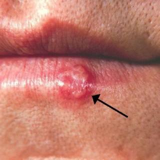 A Herpes simplex hatékonyan kezelhető almaecettel